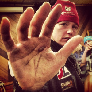 Aliy Zirkle's hand is covered in is terms from using her ski pole so much on the Iditarod trail. Photo by Emily Schwing, KUAC - Fairbanks.