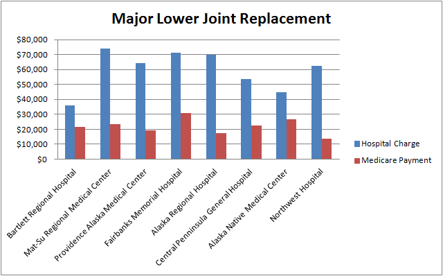 Major Lower Joint Replacement