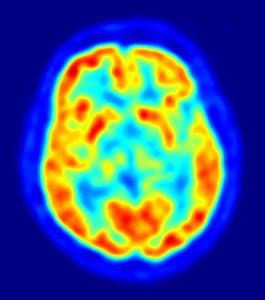 The Brain, Emotion and Social Behavior
