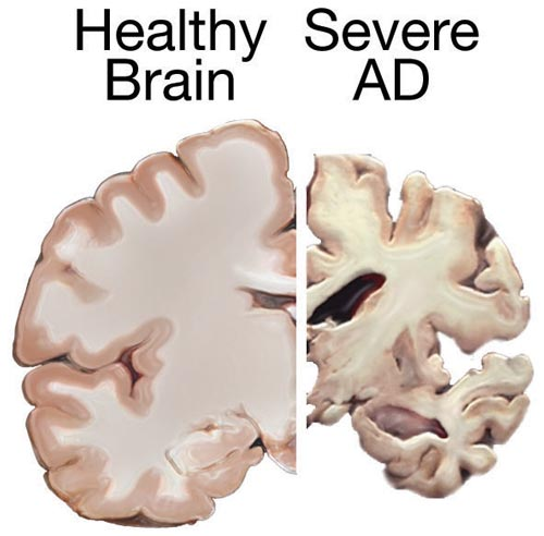 Healthy brain next to a brain with severe Alzheimer's Disease.