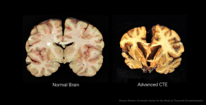 Your Amazing Brain: 'An Owners Guide for Maintenance and Performance'
