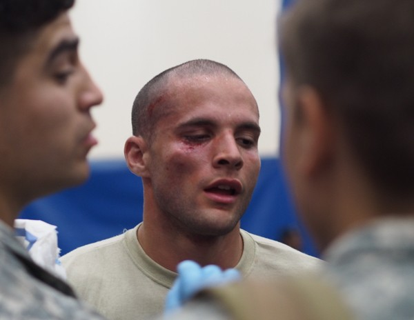 Specialist Noah Meyes gets cleaned up after winning the Cruiser-weight division. In spite of a concussion, 13 facial stitches, and a dislocated elbow, organizers were pleased with the low number of injuries. Combatives tournaments have been scrapped at other Army bases out of injury concerns. (Photo: Zachariah Hughes, KSKA)