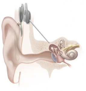 Graphic illustrating cochlear implant, courtesy National Institutes of Health via Wikimedia Commons