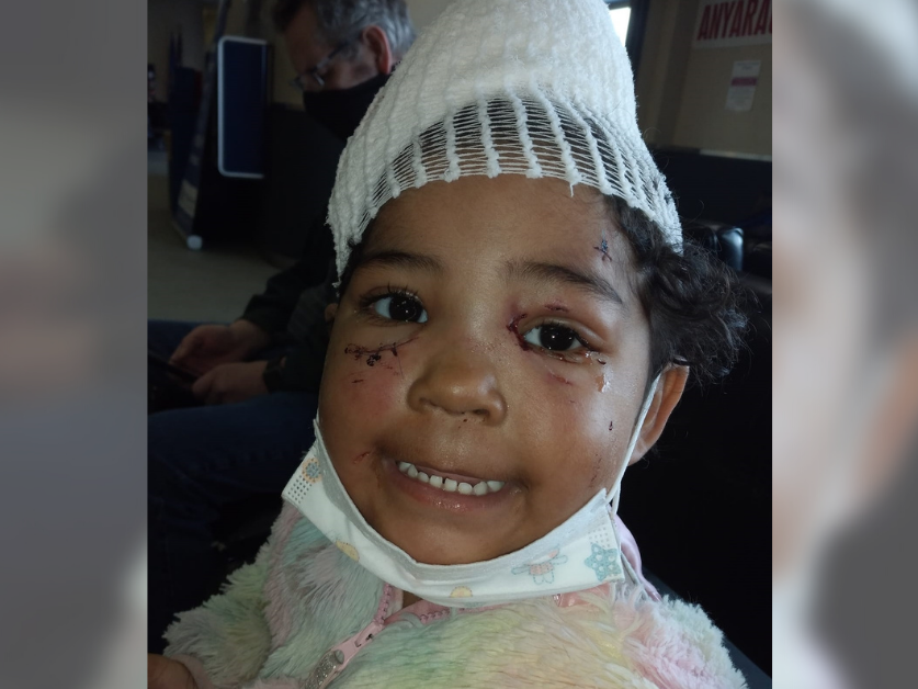A girld smiles with a bandage on her head and stitches