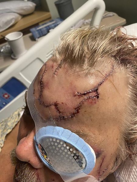 A man in a hospital bed wears an eye patch and has a badly cut up head.
